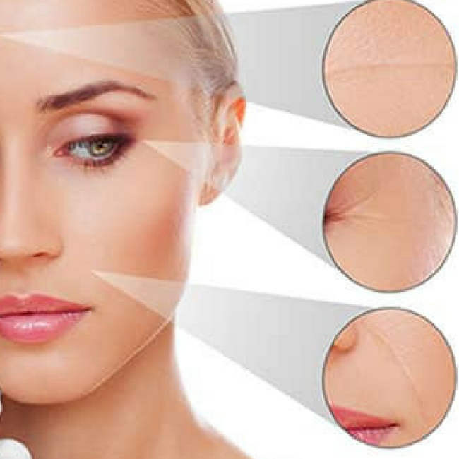 HIFU is non-invasinve procedure for skin lift.