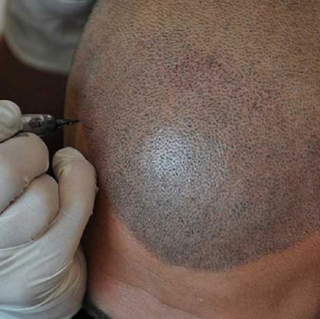 Scalp micropigmentation helps fill gaps of missing hair.