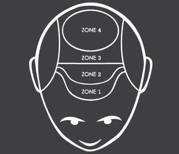 Scalp Micropigmentation Zones