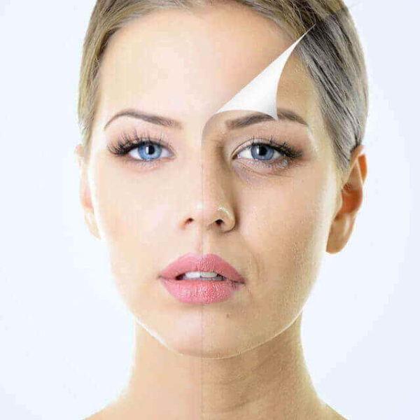 PCA peel for pimple destruction