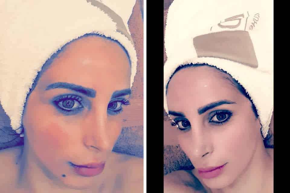 Maryam Pazouki is telling her story with 7 Derma Center.