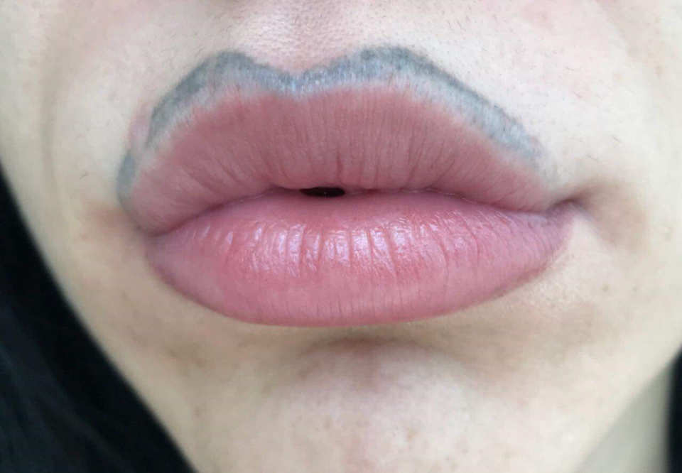 Maria Savic and her black lip before lip tattoo removal at 7 Derma