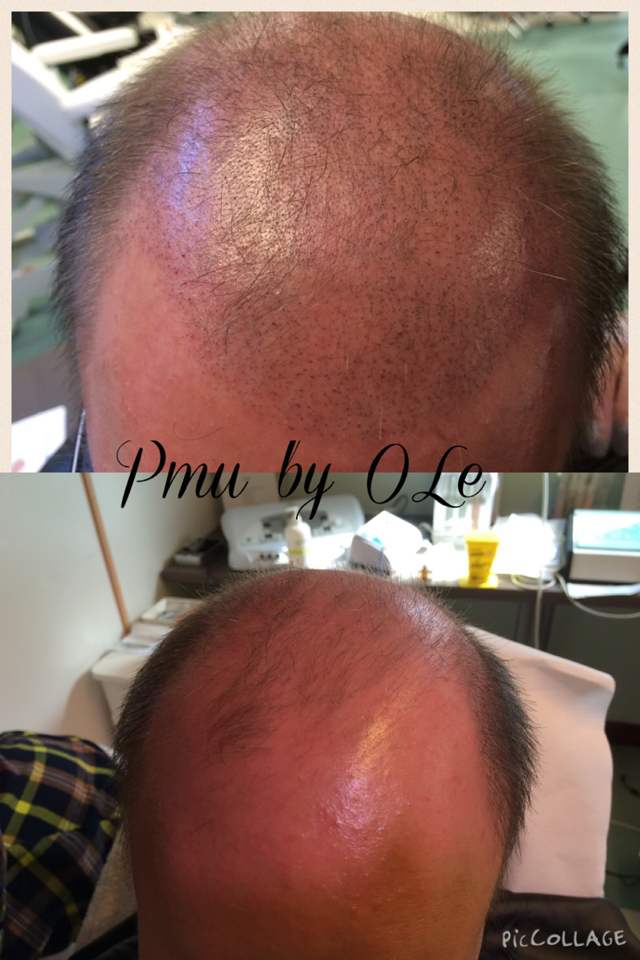 Scalp Micropigmentation done by Olga Lelekova 7 Derma