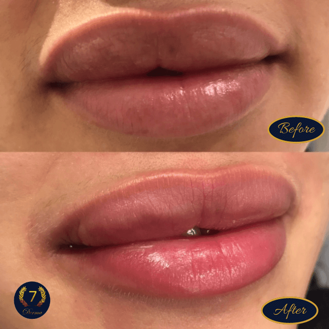 Laser Lip Tattoo for pigmented lips