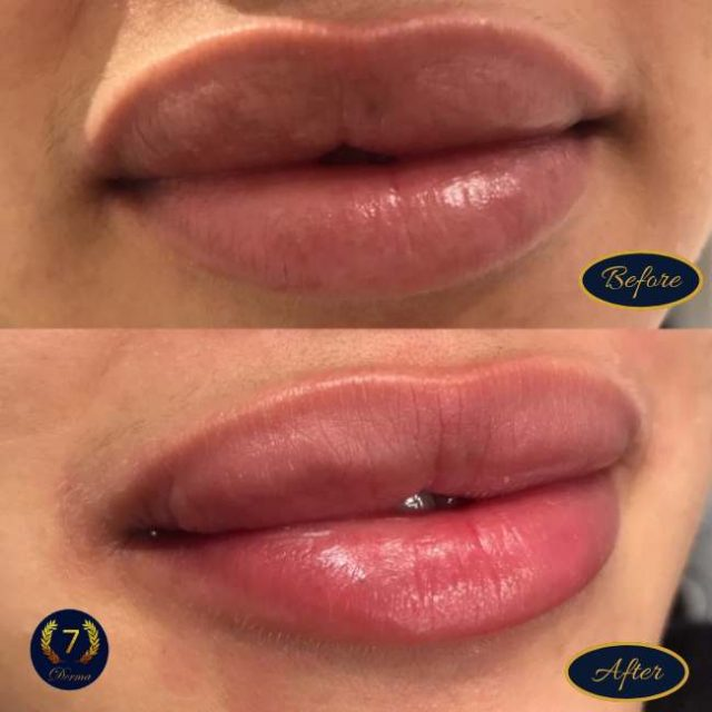 Laser Lip Lightening give you great results after the first session