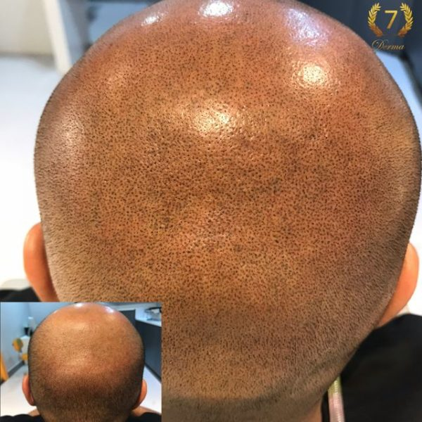 Scalp Micropigmentation by Olga Lelekova