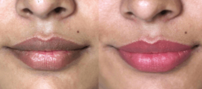 Pigmented lips after SPMU