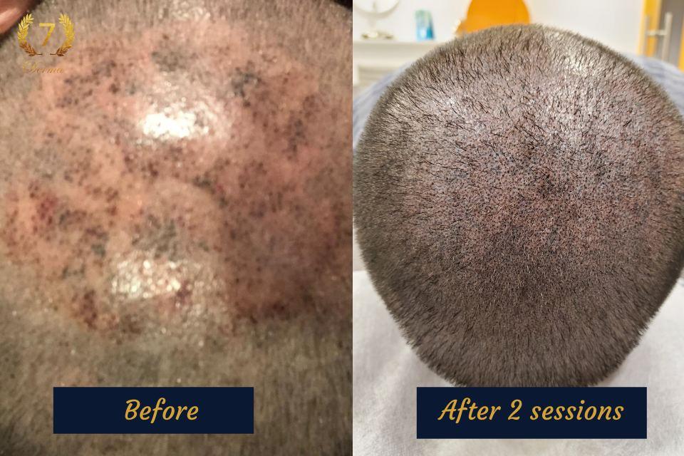 Scalp Micropigmentation Repair